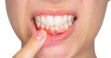 Kadınlar dikkat! Menapoz döneminde diş kaybı yaşayabilirsiniz